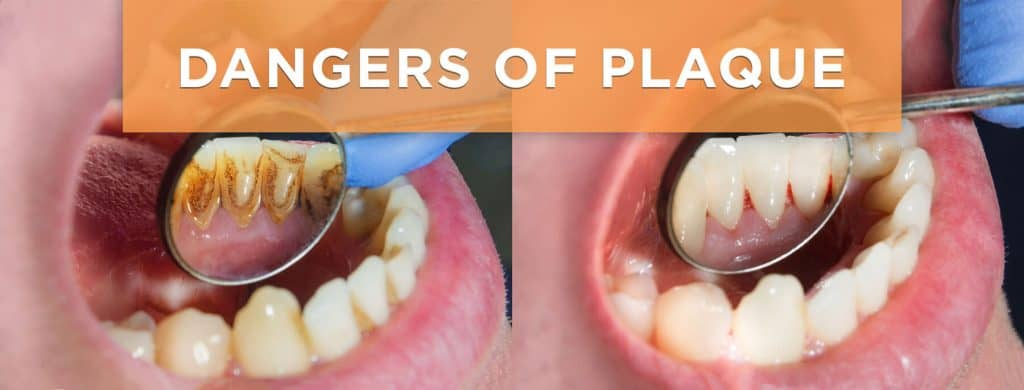 The Dangers of Plaque