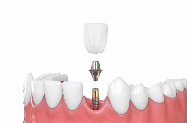 dental implants wollongong fairy meadow