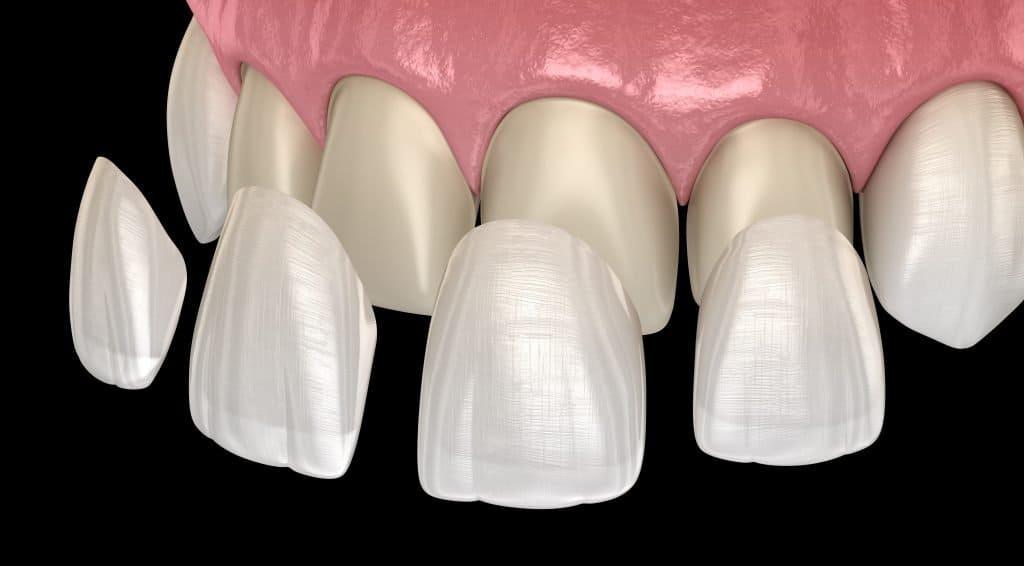 dental vaneers wollongong fairy meadow