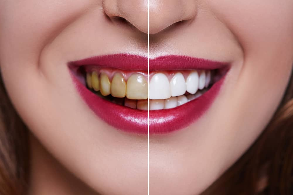 Teeth whitening treatment results