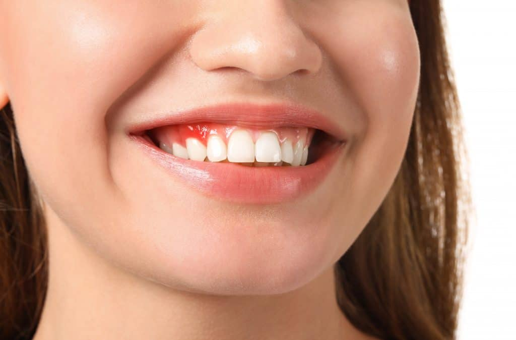 Lady showing signs of moderate periodontal disease