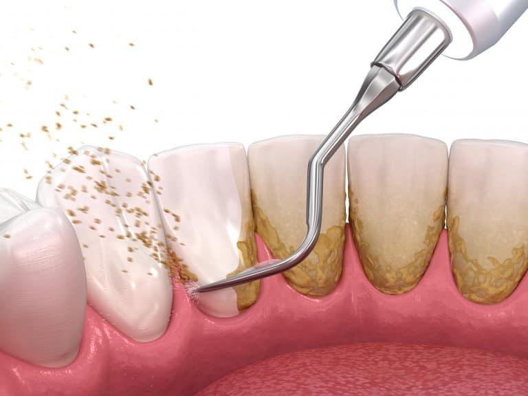 Scraping plaque off teeth