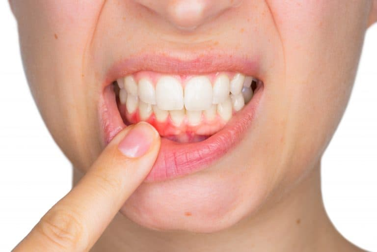 Lady showing signs of periodontal disease