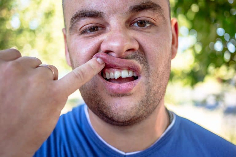 a man with a cracked tooth