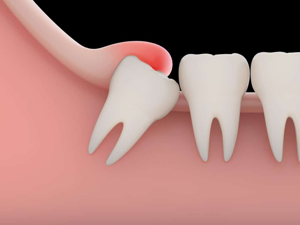 impacted tooth