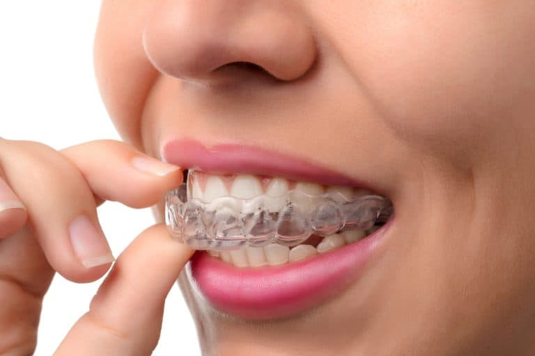 lady wearing invisalign aligners