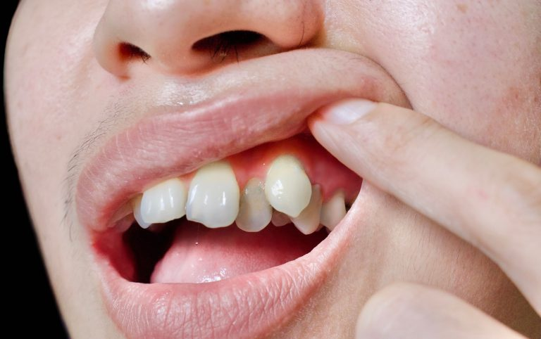 bad bite due to tooth misalignment